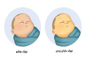 اجاره دستگاه زردی نوزاد بوشهر